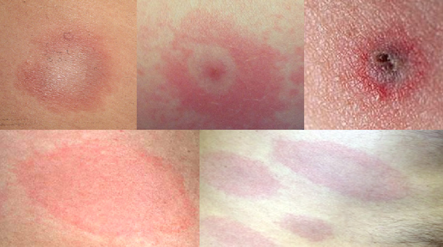 Examples of the lyme disease rash